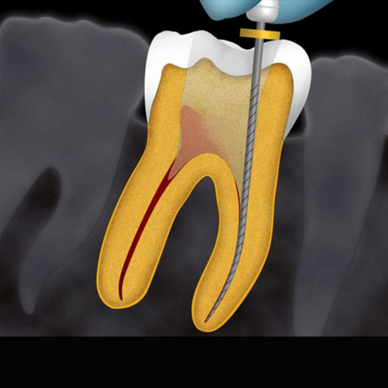 https://cliniquedentairepalmiers.ma/wp-content/uploads/2021/01/Endodontie.jpg
