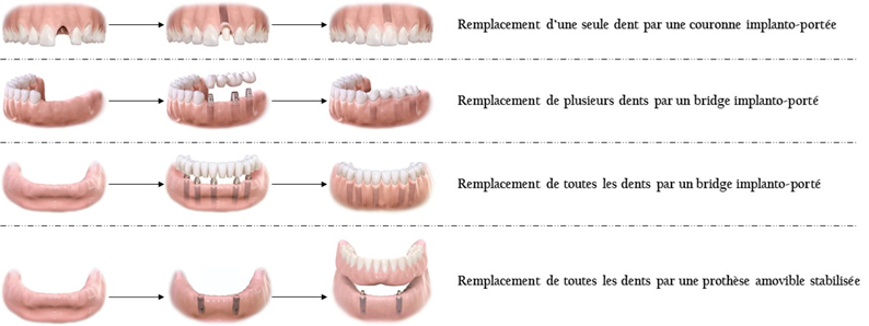 https://cliniquedentairepalmiers.ma/wp-content/uploads/2021/05/implant2.jpg
